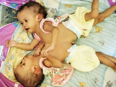 Help Separation Surgery of Twin Babies